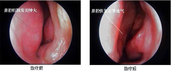 过敏性鼻炎治疗前后对比