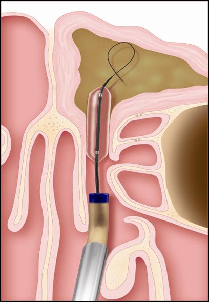 不开刀治疗鼻窦炎—无创鼻窦球囊扩张术