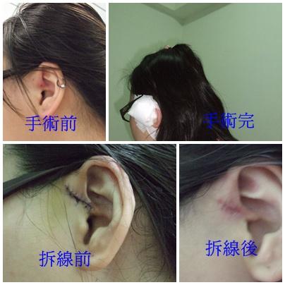 耳前瘘管手术后图片